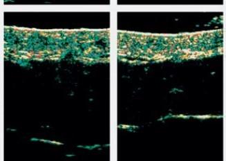 減肚腩,▲從右圖更可以觀察到皮下組織明顯收緊,效果更持久!