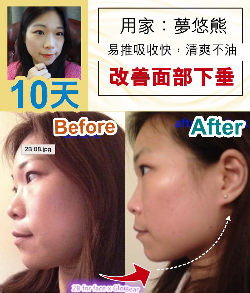逆龄 / 点解明星可以咁逆龄 / 改善面部肌肉,苹果肌下垂